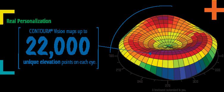 contoura vision 22000 unique elevation points