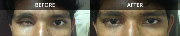 artificial eye implant in female
