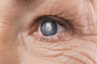cataract treatment clinic gurgaon