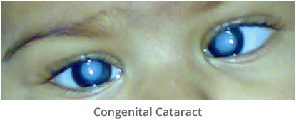 child congenital cataract treatment in gurgaon