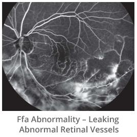 ffa-abnormality-leaking-abnormal-retinal-vessels