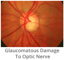 glaucomatous-damage-to-optic-nerve