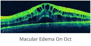 macular-edema-on-oct