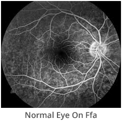 normal-eye-on-ffa