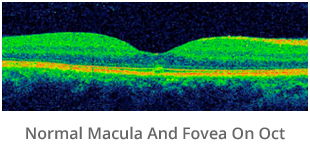 normal-macula-and-fovea-on-oct