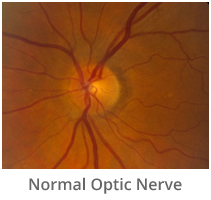 normal-optic-nerve