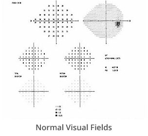 normal-visual-fields