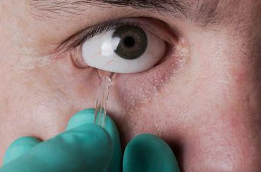 ocular-prosthesis-clinic-gurgaon