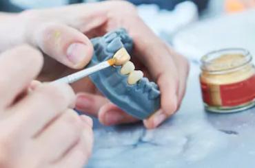 prosthodontics-clinic-gurgaon