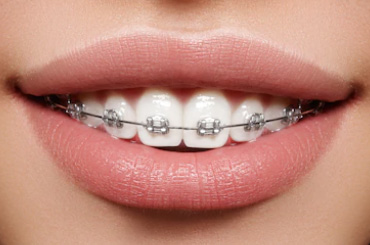 tooth-braces-clinic-gurgaon